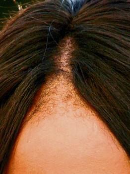 Welche gute Vitamine damit das Haar nicht prolabierten